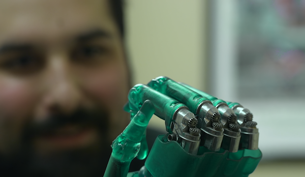 3D-printed prosthetic hands